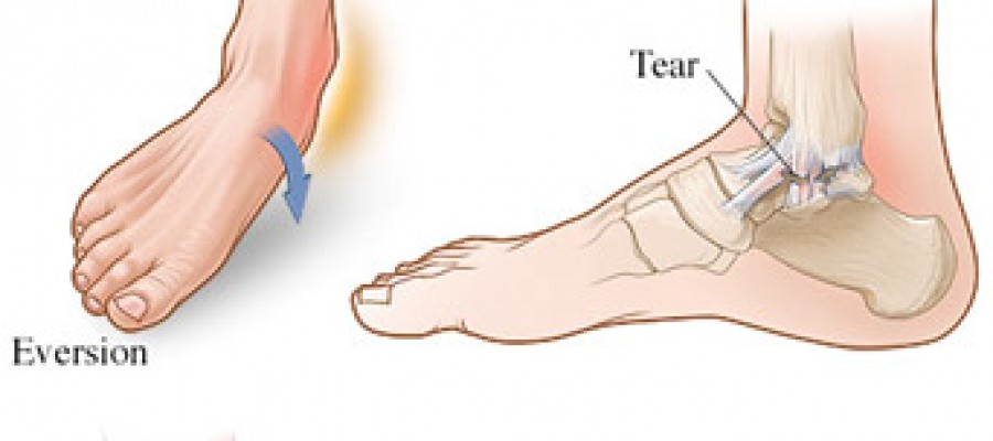 how to wrap a sprained ankle to play sports