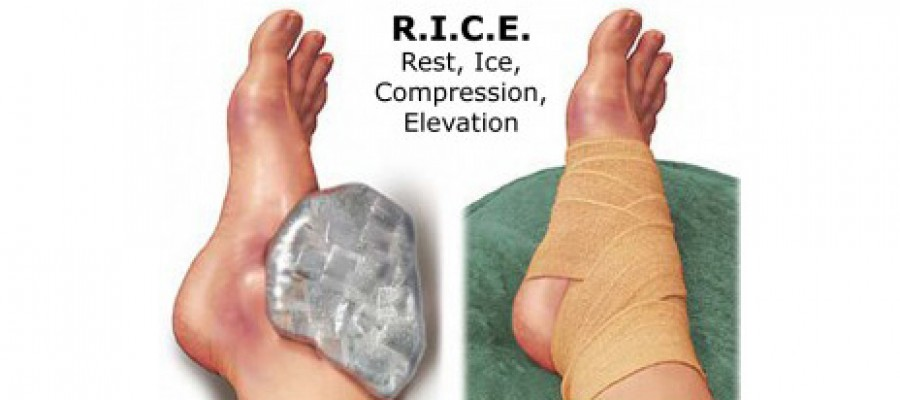 Should you Rest and Ice a Sprained Ankle?
