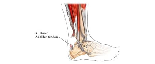 achilles tendon injury