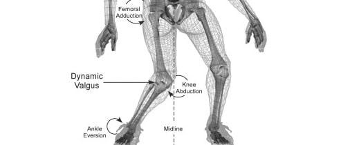 Sprained Ankle Treatme...