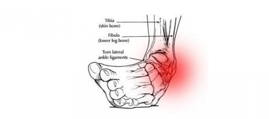 A Sprained Ankle: The Most Common Injury