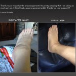 HEM-Ankle-Rehab-Laurie