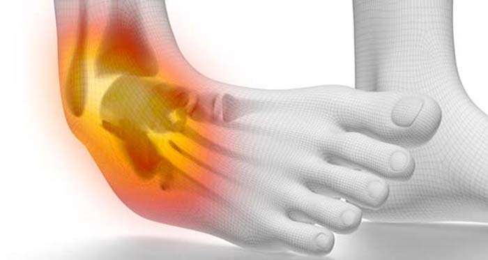 GRADE 3 ANKLE SPRAIN TREATMENT