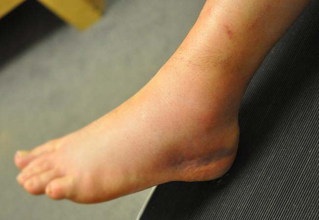 grade 2 ankle sprain