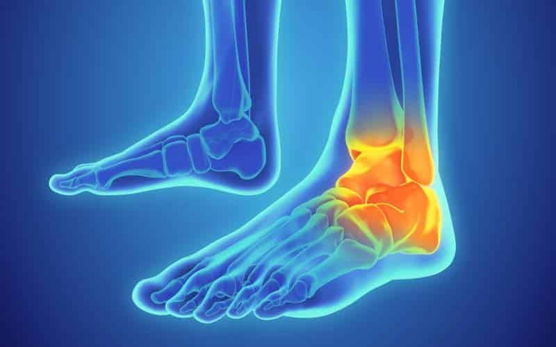 heal grade 2 ankle sprain